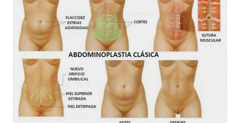 Técnica de Abdominoplastia, Dr Sergio Mur